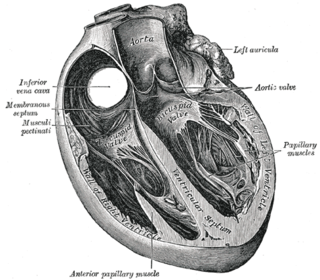 Interventricular septum