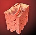 Heart coronary artery lesion.jpg
