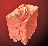 Книга Дислипидемии, атеросклероз и их связь с ишемической болезнью сердца и мозга