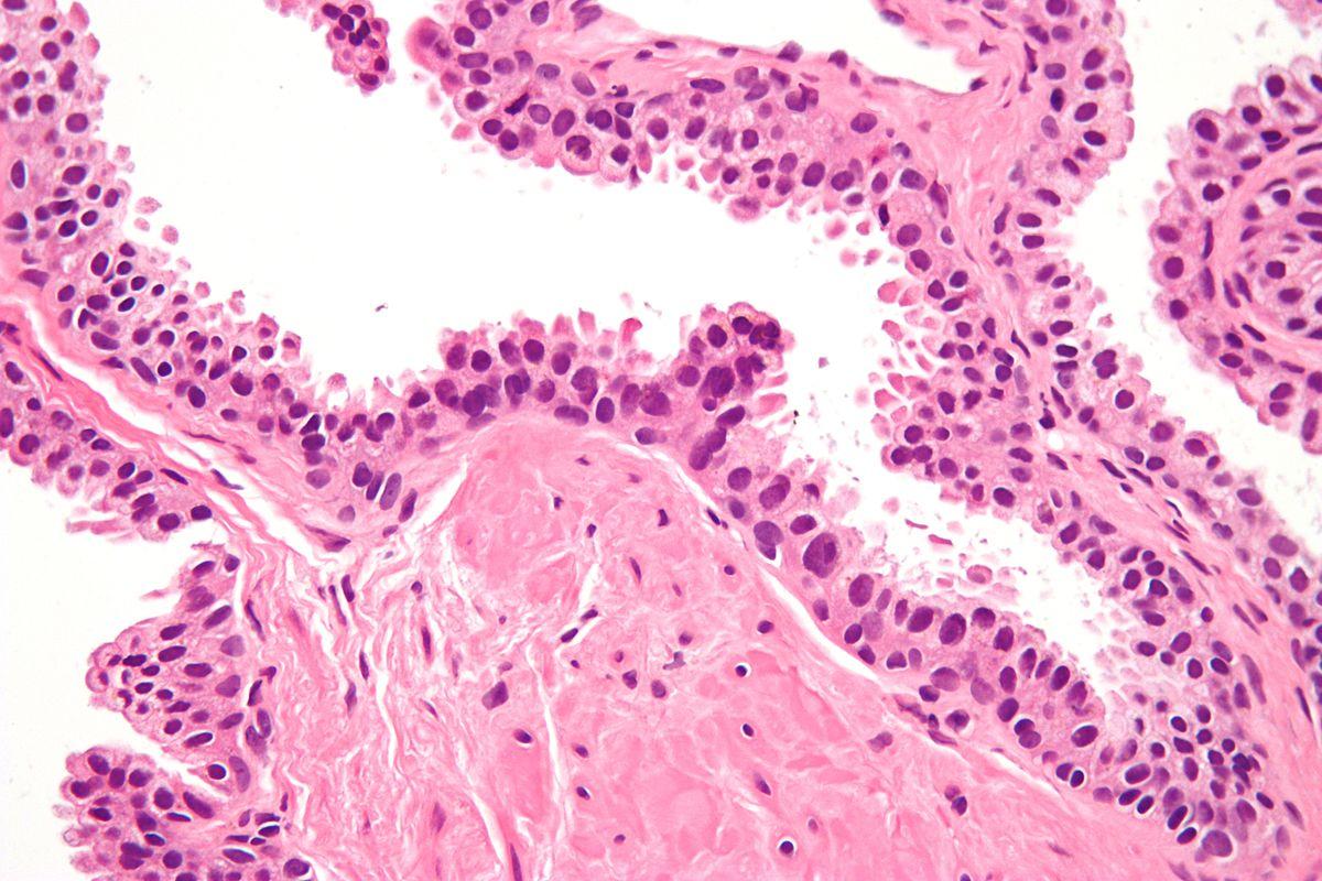 5 Prostate Cancer Symptoms