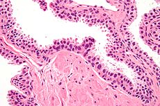 High-grade prostatic intraepithelial neoplasia high mag.jpg