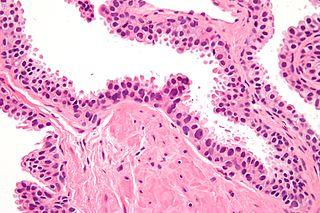 High-grade prostatic intraepithelial neoplasia