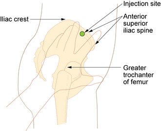Intramuscular injection - Ventrogluteal site and rectus femoris sites for intramuscular injection