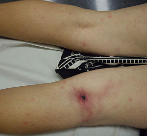 Rickettsia sibirica - Inoculation eschar on popliteal area and discrete maculopapular elements in patient with lymphangitis infected with Rickettsia sibirica mongolitimonae