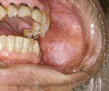 Oral Leukoplakia On The Buccal Mucosa. Overall, Leukoplakia Carries A Risk  Of Transformation To Squamous Cell Carcinoma That Ranges From Almost 0% To  About ...