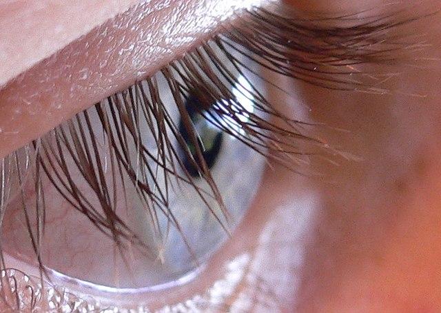 File:N2 Human eye.jpg - Wikimedia Commons