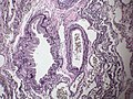 Normal lung - Elastic stain (5568239985).jpg