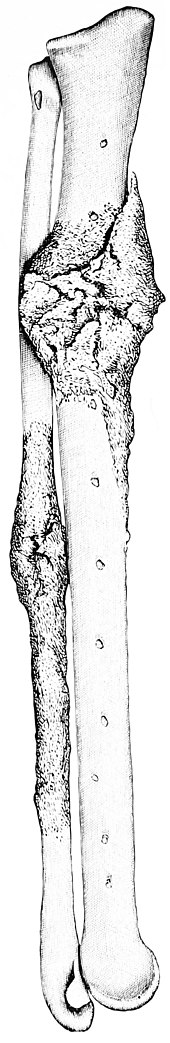 PSM V42 D702 Left ulna and radius of the turkey vulture.jpg