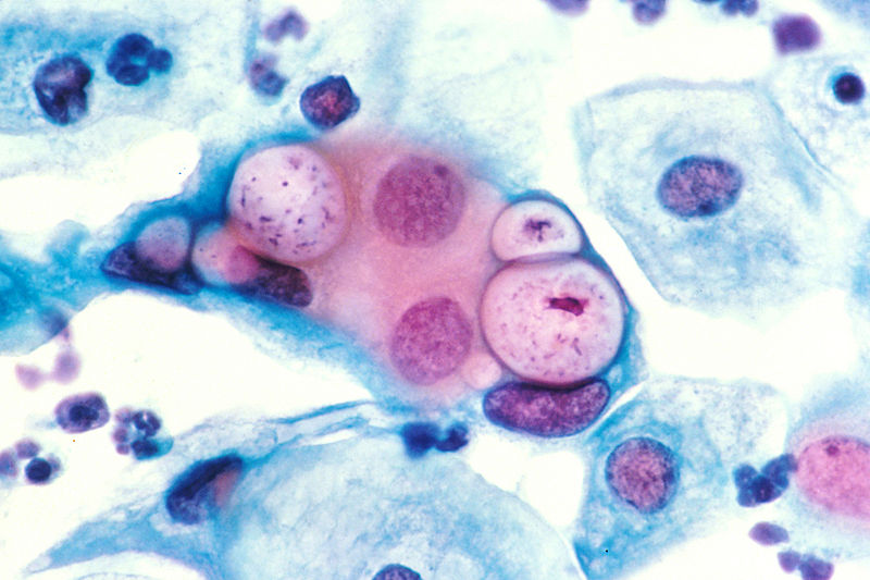 Pap smear showing Chlamydia in the vacuoles 500x H&E