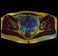 Pelvic MRI 05 11.jpg