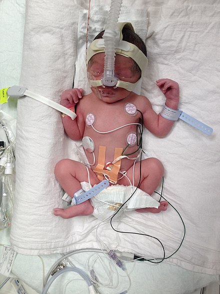 Preterm birth at 32 weeks and 4 days with a weight of 2,000 g attached to medical equipment Premature birth Alberta, Canada.jpg