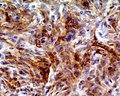 Skin Tumors-611.jpg