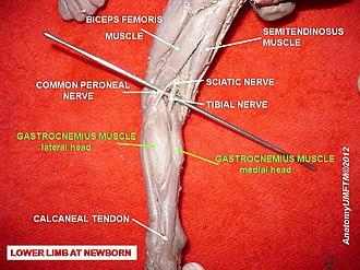 Gastrocnemius muscle - Image: Slide 6i
