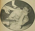 Terry Funk is a bloody mess after a chain match - Inside Wrestling - December 1972 p.29 (cropped).jpg