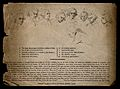 The death of General John Burgoyne on the battlefield; key p Wellcome V0006917.jpg