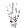 Triangular bone (left hand) 03 dorsal view.png