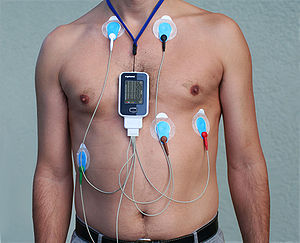Holter monitor - Image: Alex CM4000