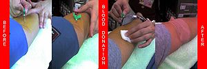 A donor's arm at various stages of donation. The two photographs on the left show a blood pressure cuff being used as a tourniquet.