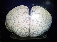 Photo of dual-hemisphered brain