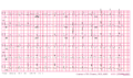 Brugada syndrome type1 example5 (CardioNetworks ECGpedia).png