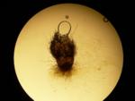 Chaetonium (Acremonium) perithecium 40X.png
