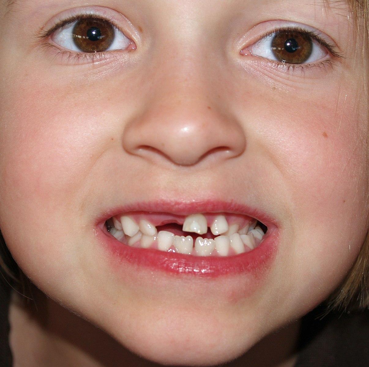 Зубы у детей сверху фото
