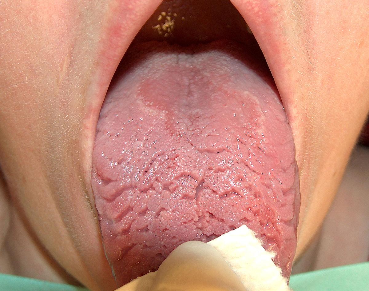 sprickor i tungan