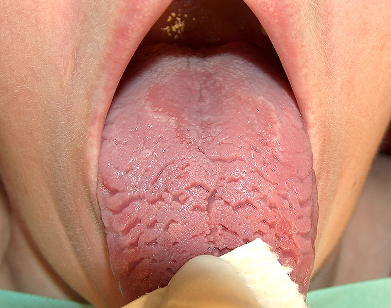 File:Fissured geographic tongue.jpg