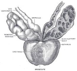 il tumore alla prostata in che forma si presentano