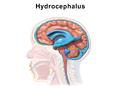 Hydrocephalus.png