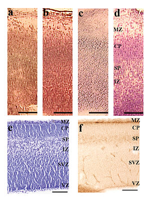 Cresyl violet - c. 0.1% Cresyl violet in H2O. d. 1% Cresyl violet in H2O.