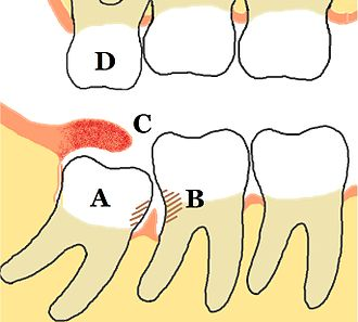 Wisdom tooth - Some problems which may or may not occur with third molars: A Mesio-impacted, partially erupted mandibular third molar, B Dental caries and periodontal defects associated with both the third and second molars, caused by food packing and poor access to oral hygiene methods, C Inflamed operculum covering partially erupted lower third molar, with accumulation of food debris and bacteria underneath, D The upper third molar has over-erupted due to lack of opposing tooth contact, and may start to traumatically occlude into the operculum over the lower third molar. Unopposed teeth are usually sharp because they have not been blunted by another tooth.