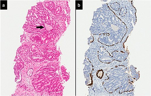 carcinoma acinar usual de prostata gleason 6