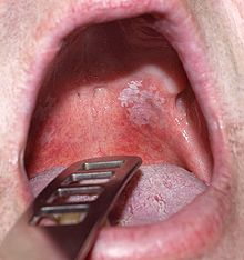 Leukoplakia of the soft palate