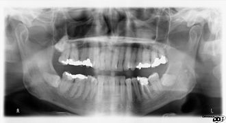 Dental anatomy - Panoramic x-ray radiography of the teeth of a 64-year-old male. Dental work performed mostly in UK/Europe in last half of 20th Century