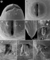 Parasite180070-fig5 Rasheedia heptacanthi (Nematoda, Physalopteridae).png