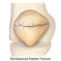 Patellar Fracture (Non-Displaced).png