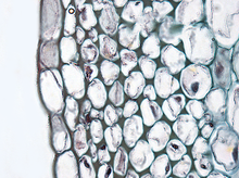 Plant cell type collenchyma.png