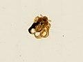 Pthirus pubis (YPM IZ 093662).jpeg