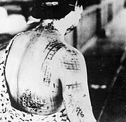 Japanese woman suffering burns from thermal radiation after a nuclear bomb explosion in 1945.