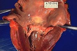 febris rheumatica
