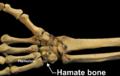 RightHumanAnteriorDistalRadiusUlnaCarpals - Hamate bone.png