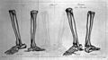 Skeletal anatomy of lower leg, 1799 Wellcome L0030019.jpg