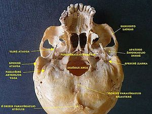 Zygomatic arch - Image: Slide 6JAN