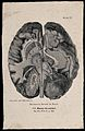 The brain seen from the underside, sectioned horizontally; w Wellcome V0009500EC.jpg