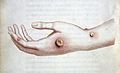 The hand of Sarah Nelmes infected with the cowpox. Wellcome M0009446.jpg
