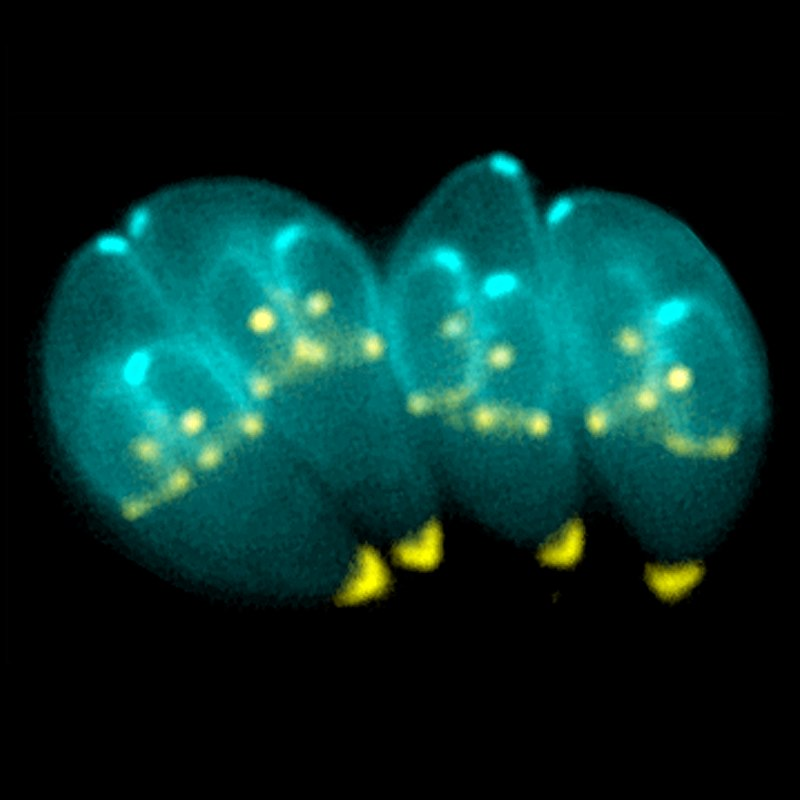 Toxoplasma gondii.jpg