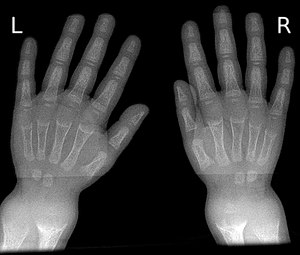 X-ray of Hands Identifying Rickets