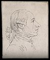 A man with a nose indicating reflectiveness (according to La Wellcome V0009248EL.jpg