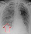 AspirationPneumonia.png